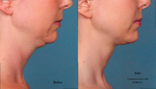 Kybella_photos