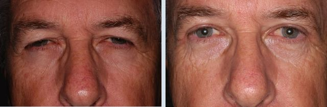 Upper Blepharoplasty Photo